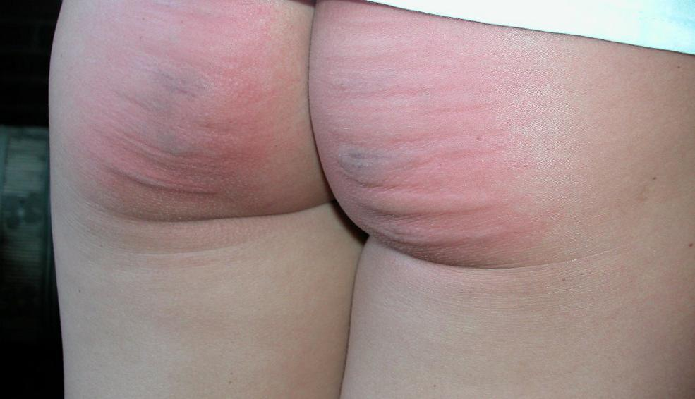 Ass Fucked In Porn Site Spanking